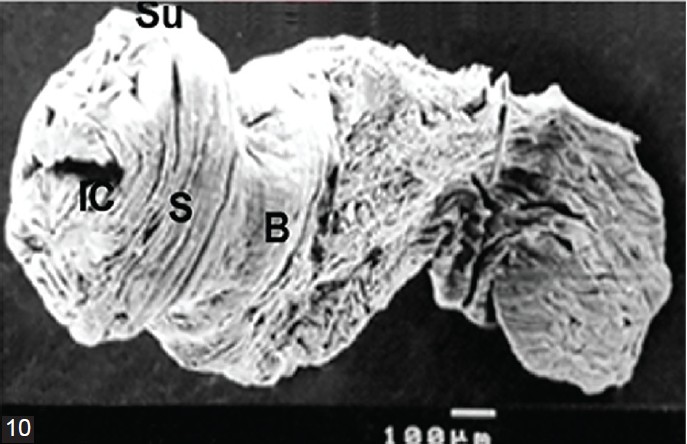 Figure 10: C<i>ysticercus</i> pisiformis, 3 weeks PI. SEM showing