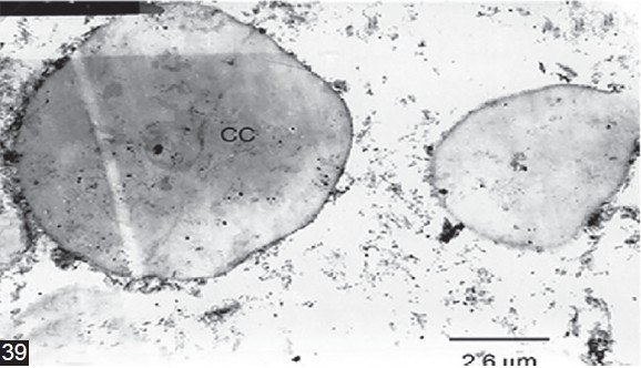 Figure 39: TEM of tegument covering invagination canal of <i>Cysticercus pisiformis.</i> One-week-old cysticercus showing opaque bodies in the parenchymal matrix representing the calcareous corpuscles (CC).