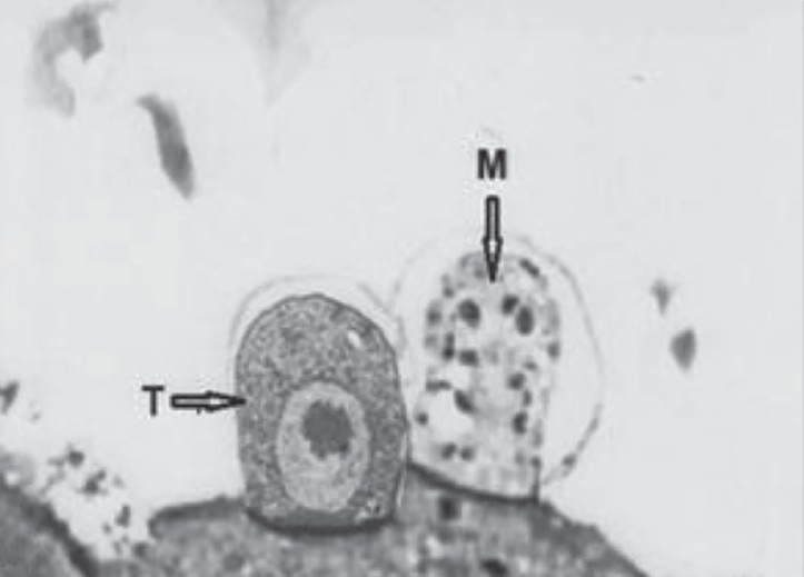Figure 8: Mouse ileum section infected with human <i>Cryptosporidium</i> spp. showing a trophozoite (T) and a macrogamont (M) enveloped by a parasitophorous vac uole (×10 000).