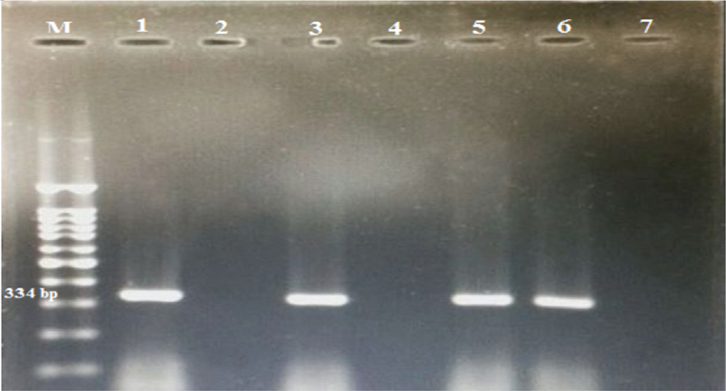 Figure 1 PCR-amplified products using <i>M. hominis</i> specific primers RNAH1 and RNAH2. M: 100 bp DNA markers. Lanes: 1,3,5 and 6 show bands at 334 bp indicating positive results.