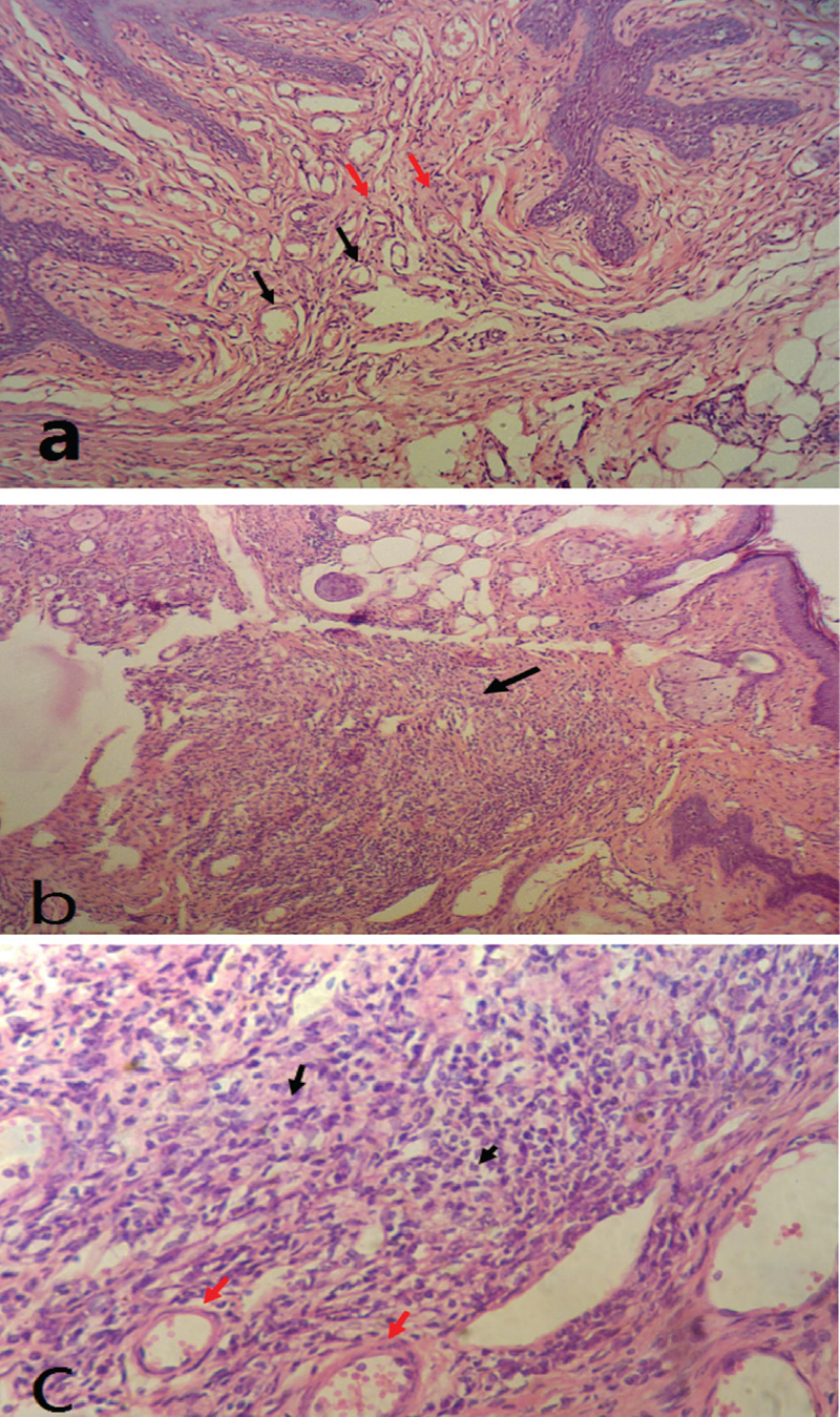 Figure 3 <b>Histopathological results:</b> (a) Section in the vagina showing mild inflammatory changes in the form of congested blood vessels (black arrows) and inflammatory cell infiltrate in vaginal wall (red arrows) (H&E, 10×). (b) Section in the vagina showing nodular collection of chronic inflammatory cells (black arrow) (H&E, 10×). (c) Section in the vagina showing inflammatory cell infiltrate is formed mainly of lymphocytes, plasma cells and macrophages, with scattered neutrophils (black arrows). Thick walled blood vessels (red arrows) are also seen (H&E, 20×).