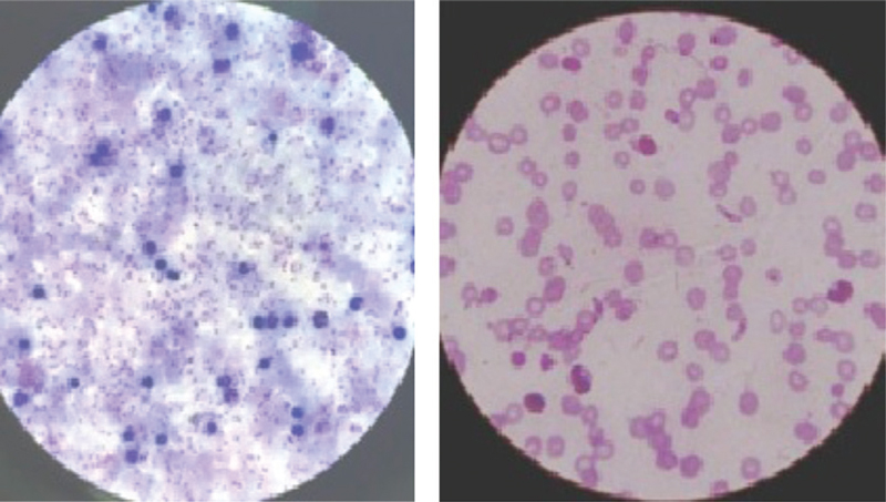 Figure 2 Blood smear showing (a) <i>P. falciparum</i> ring stage in a thick blood film and (b) <i>P. falciparum</i> gametocyte in a thin blood film.
